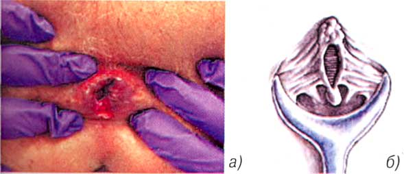 Прожилки крови в слизи при дефекации
