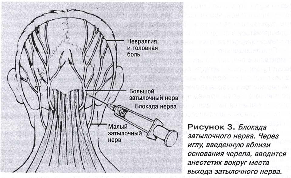 Головная боль у основания черепа