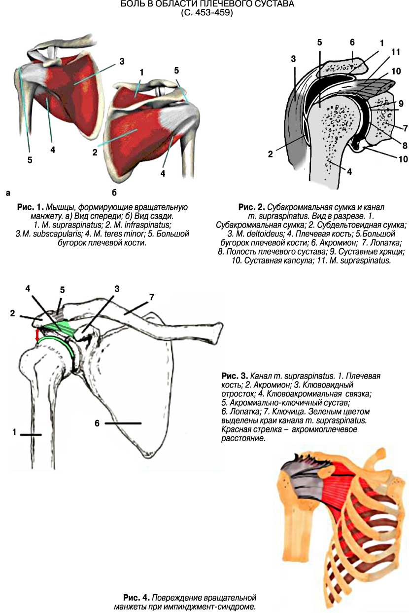 аневризма в плечевом суставе