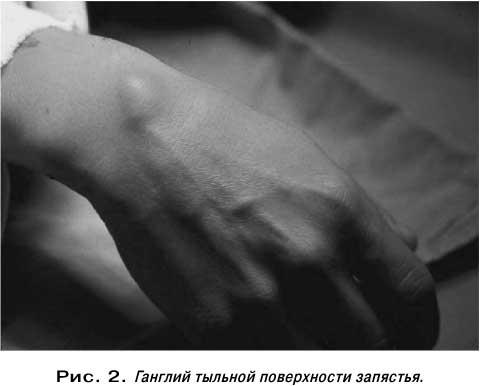Ганглии (кисты влагалища сухожилий) - наиболее распространенные...